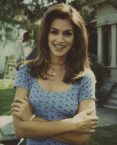 Cindy Crawford with braces treatment