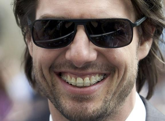 Tom-Cruise-with-Braces