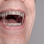 Orthodontic Treatment with Rubber Bands